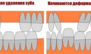 7 способов восстановить все зубы на нижней челюсти