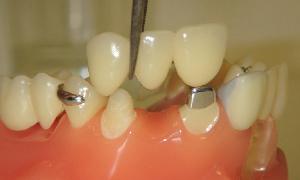Подготовка полости рта к протезированию с учетом возраста