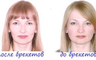 Применение брекетов для клыков