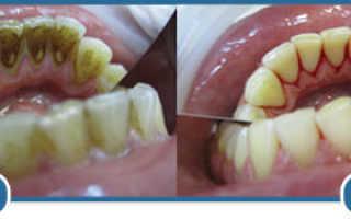 Чистка зубов Air Flow – современная профессиональная процедура для каждого