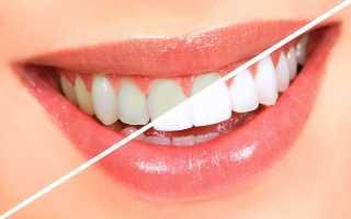 Как и чем быстро отбелить зубы в домашних условиях безопасно и без вреда эмали, народные средства