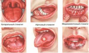 Как лечить воспаление ротовой полости