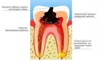 Что такое Кариес осложненный в стоматологии?