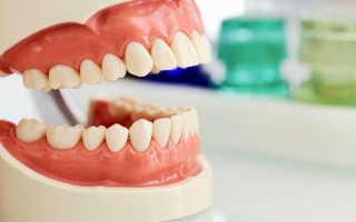Кариес зубов – фото, причины возникновения, последствия