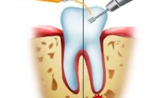 Гемисекция зуба или корня: что это такое, для чего проводится