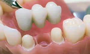 Цельнолитые мостовидные протезы — этапы изготовления литого зубного моста
