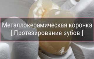 Протезтирование металлокерамикой, цены