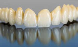 Аллергия на металлокерамику коронки зубные