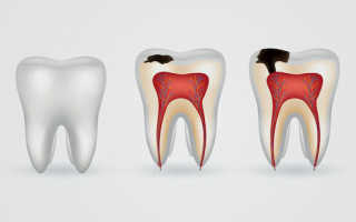 Появление коричневого оттенка зубов