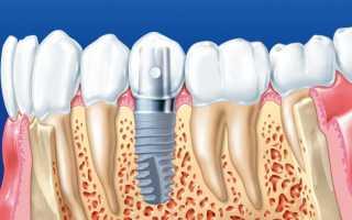 Adin — зубные импланты от производителя Адин Дентал Имплант Рус (Израиль)
