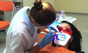 Лампа для отбеливания зубов: как работает и насколько эффективен метод