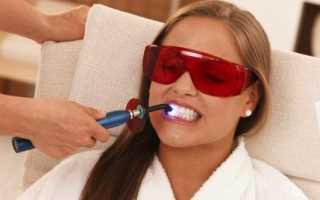 Фотоотбеливание зубов: отзывы, фото до и после процедуры, особенности и результат