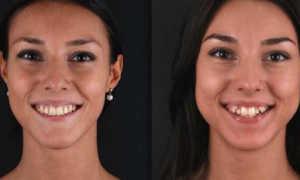 Фото до и после брекетов, особенности установки
