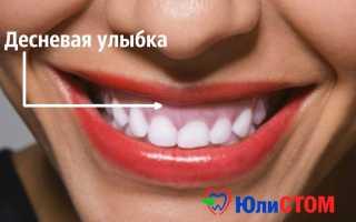 Особенности и причины десневой улыбки как эстетического дефекта: методы коррекции