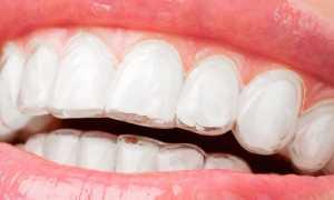 Выравнивания зубов не дорогой