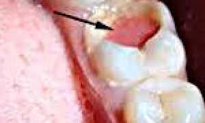 Причины и лечение хронического фиброзного пульпита