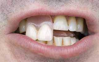 Поставить временный протез на зуб, есть ли альтернативы