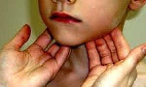Может ли от удара в челюсть побелеть десна и воспалиться лимфоузел?