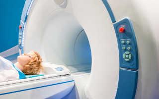 Можно ли делать МРТ с металлокерамическими коронками, противопоказания к процедуре головного мозга