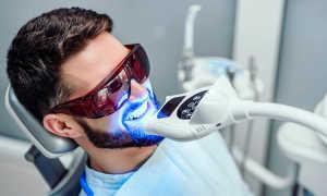 Отбеливание зубов перекисью водорода: все за и против