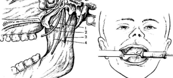 Как выполняется анестезия проводниковая на нижней челюсти