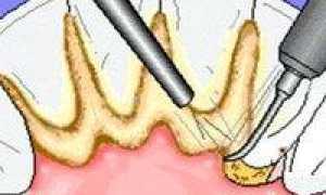 Лазерное удаление зубного камня: особенности метода