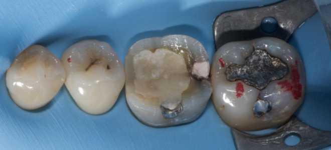 Удаление зубов как метод исправления деформаций окклюзионной поверхности