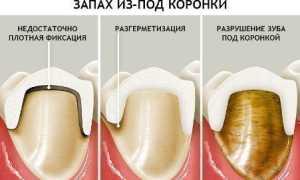 Жидкость из под зубной коронки