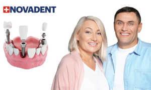Протезирование зубов на имплантах в Москве – цены и виды