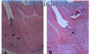 Воспаление пародонта при сахарном диабете. Пародонтит при поражениях органов