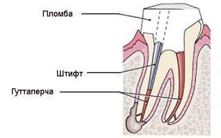 Воспален зуб и присутствие тела в виде штифта, что делать?
