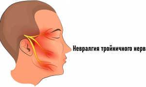 Что такое неврит тройничного нерва?