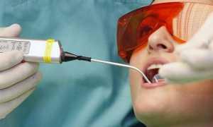 Коагуляция десны в стоматологии