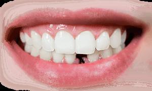 Протезирование зубов: виды и цены в стоматологии Москвы