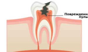 Пульпит МКБ-10: классификации и виды болезни пульпы зуба
