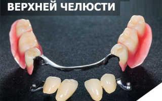 Бюгельный протез на верхнюю челюсть: отличная фиксация и высокая эстетика