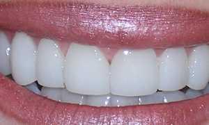 Люминиры на зубы: установка, виды, показания и противопоказания