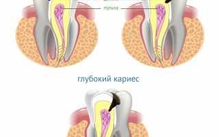 Стадии кариеса – Симптомы и проявления кариеса