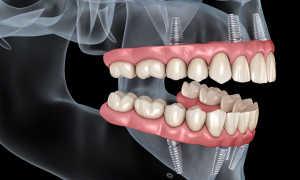 Какие зубы лучше вставить: виды протезов и имплантатов