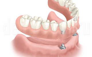 Как быстро привыкнуть к съёмным зубным протезам и убрать шепелявость