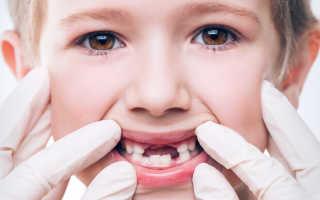 Протезирование молочных зубов у детей