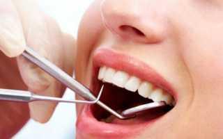 Санация полости рта — зачем она нужна и как проводится?