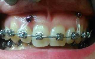 В каких случаях в ортодонтии создают скелетную опору и что это такое?