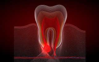 Отек после удаления зуба мудрости – сколько держится?