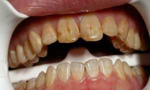 О чем говорит потемнение зубов у взрослых и детей