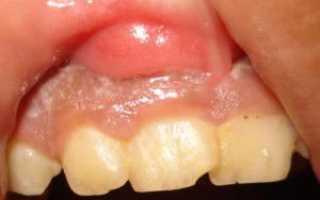 Опухла десна, есть проблемы с зубами. Связано ли это?