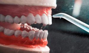 Как пользоваться ирригатором или тонкости процесса
