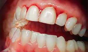 Запах между зубами и от дёсен — причины заболевания и способы лечения