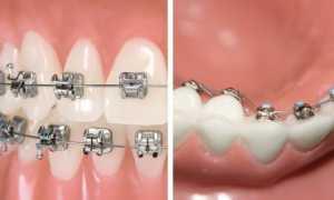 Лингвальная брекет-система 2D — плоские зубные брекеты Forestadent