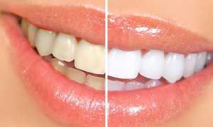 Отбеливание зубов: профессиональное, лазерное, косметическое